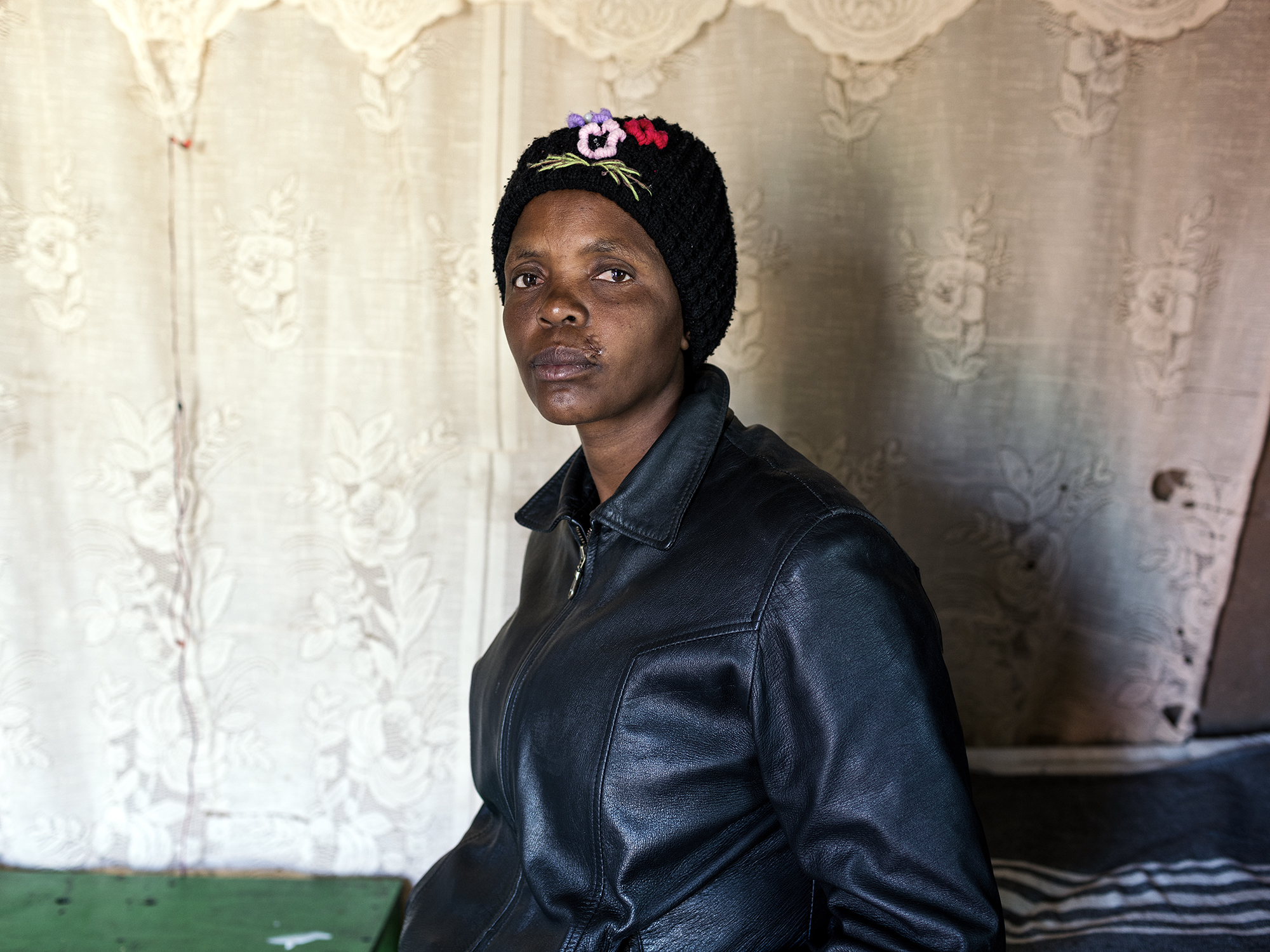 Victoria Matjiu, 37, Rubber bullet injury, Motlhotlo Village, Mapela, Limpopo, Northern Limb